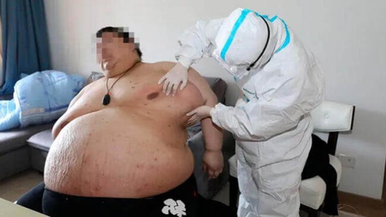 Engordó 100 kilos durante la cuarentena