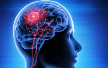 Descubren cómo algunos tumores cerebrales consiguen «esquivar» la quimioterapia
