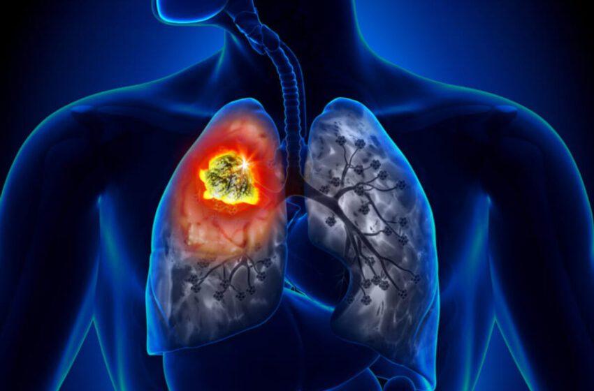Biomarcadores son herramientas eficaces para tratar mejor el cáncer de pulmón