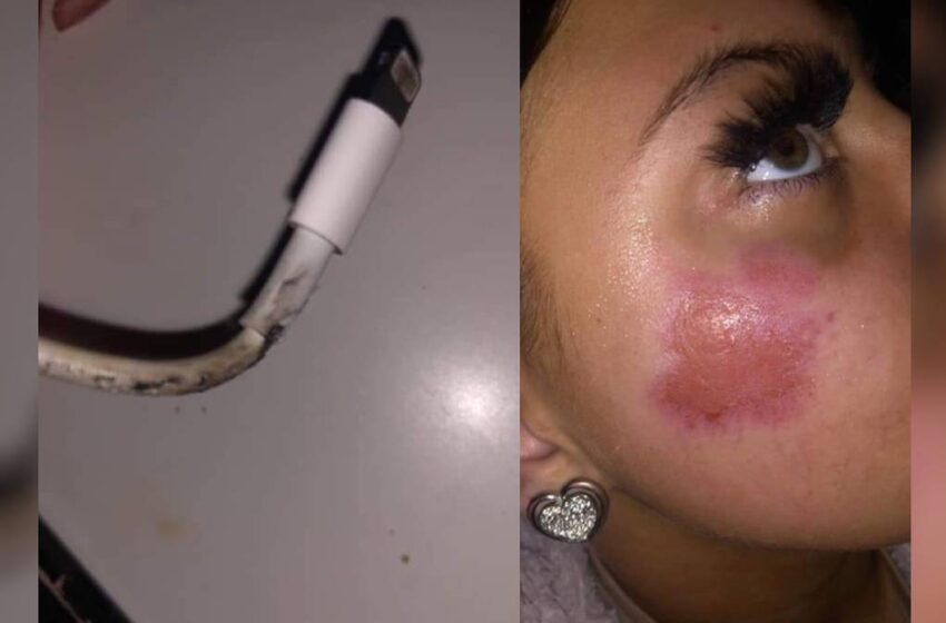 Cargador de iPhone estalla y quema cara a una joven que estaba durmiendo