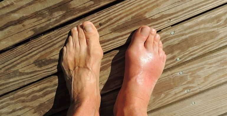¿Qué debe saber sobre la hinchazón en las piernas?